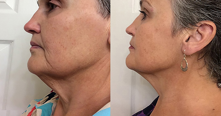 Before and after images of an older white female light therapy user.