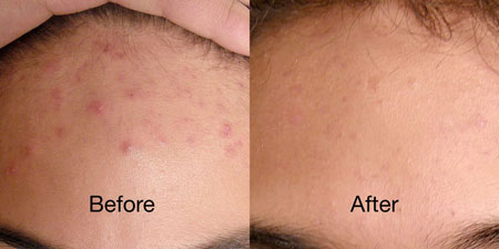 Before and after images of the forehead of a reVive Light Therapy acne device user showing a decrease in acne blemishes.