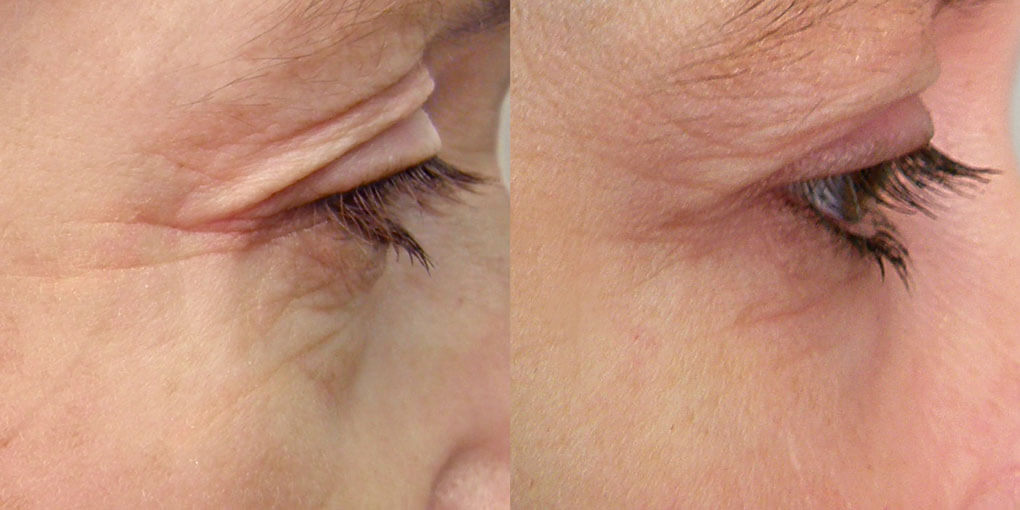 Before and After close up images of crow's feet and reduction in wrinkles around eye area from using red light therapy