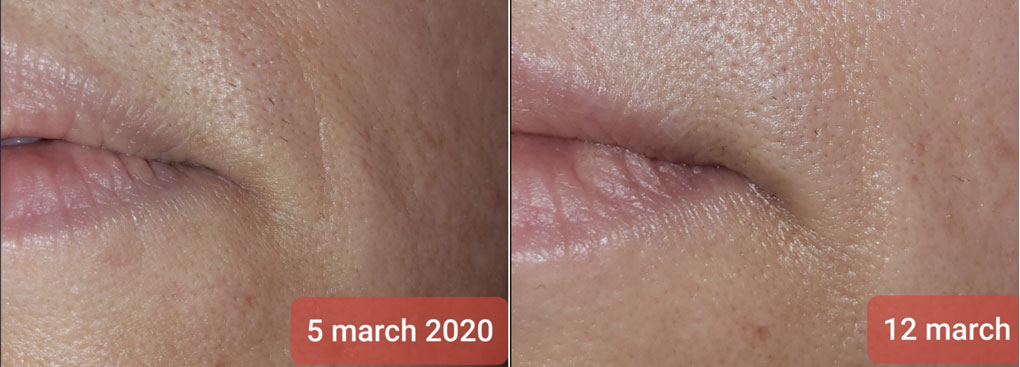 Before and After images of red light therapy results in reducing wrinkles around the mouth