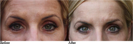In house wrinkle reduction study before and after skin tone and discoloration